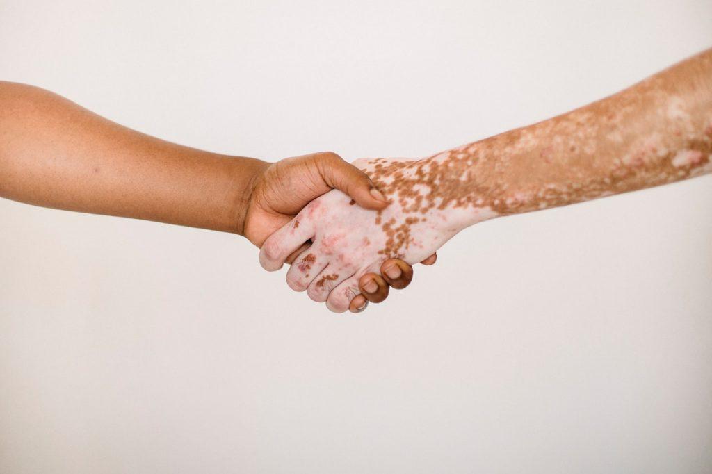 Bielactwo - dłonie